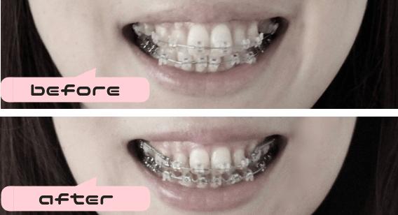 歯列矯正1年半
