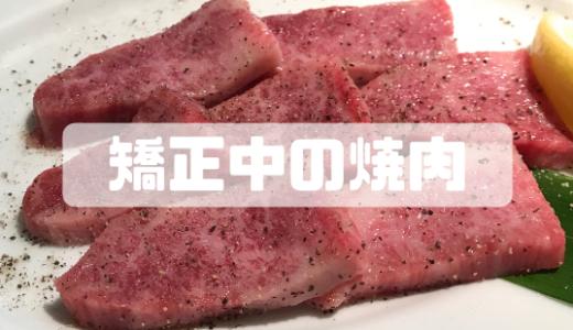 歯列矯正中の焼肉って食べづらい?注意したいポイントまとめ